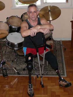Disabled Musicians Musicians With Challenges